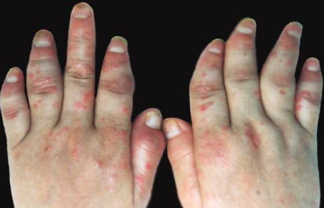 关节型银屑病要如何保养