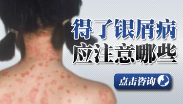 牛皮癣患者如何预防脱发.jpg