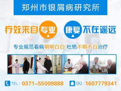 郑州哪里治疗牛皮癣最好