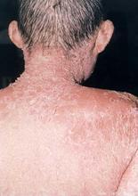 颈部患上牛皮癣是什么原因