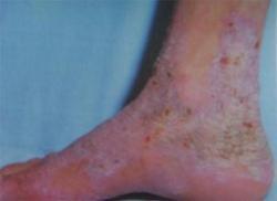 怎么治疗双脚银屑病