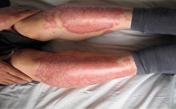 红皮型牛皮癣怎么治疗