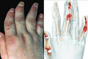 关节型银屑病怎么诊断呢