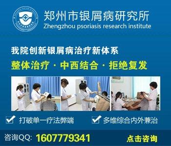 漯河治疗牛皮癣的医院