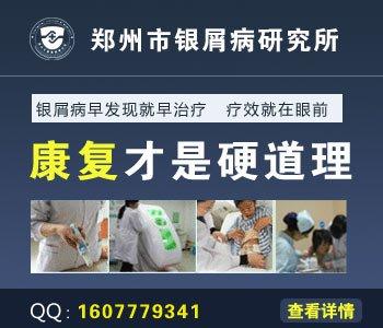 许昌治疗牛皮癣医院